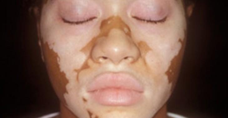 Fill 730x380 vitiligo 3
