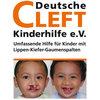 Deutsche Cleft Kinderhilfe e.V.